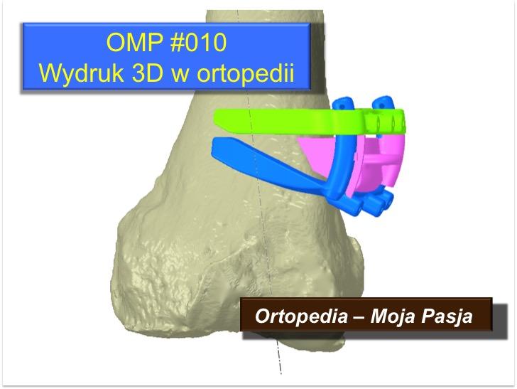 OMP#010 Wydruk 3D