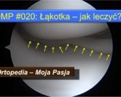 OMP#020