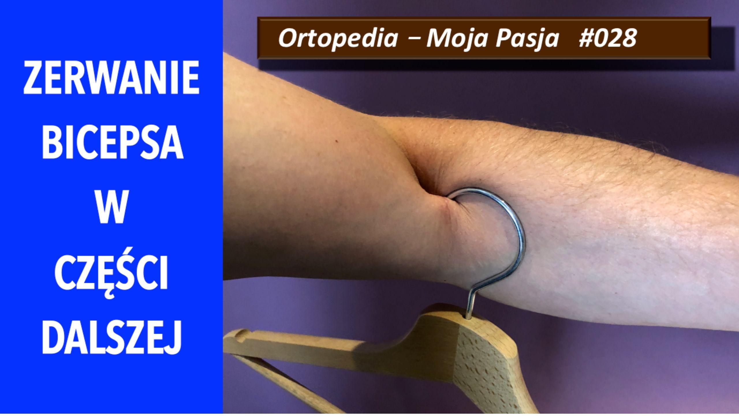 Zerwanie bicepsa w części dalszej