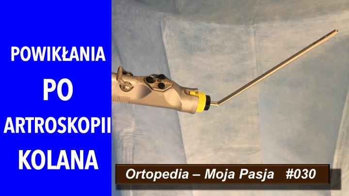 OMP #020 Powikłania po artroskopii